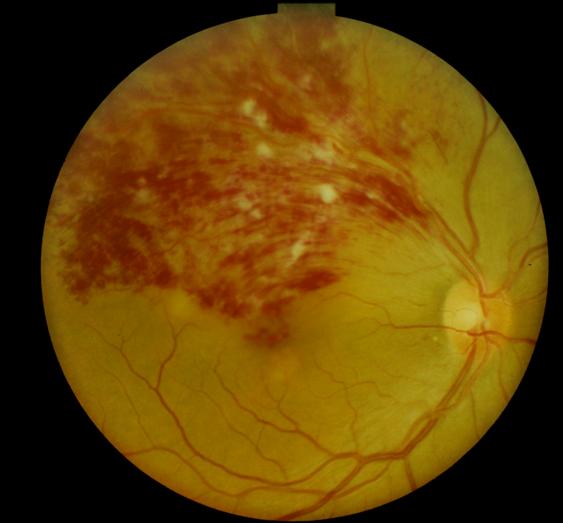 網膜静脈分枝閉塞症(BRVO)